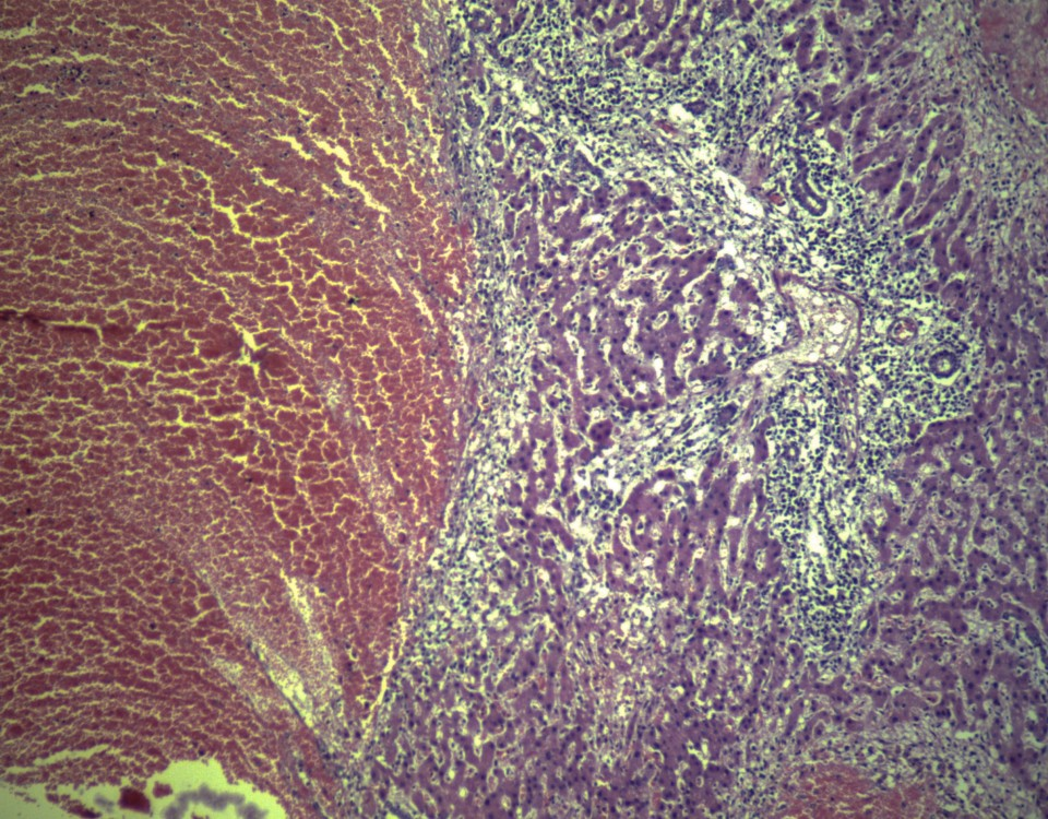 Distomatosis hepatis, HEx20_edited